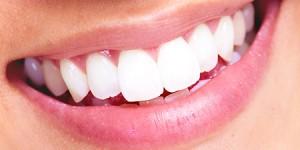 perfect smile Dr. Joe Thomas Dentistry