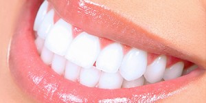 bright white smile Dr. Joe Thomas Dentistry