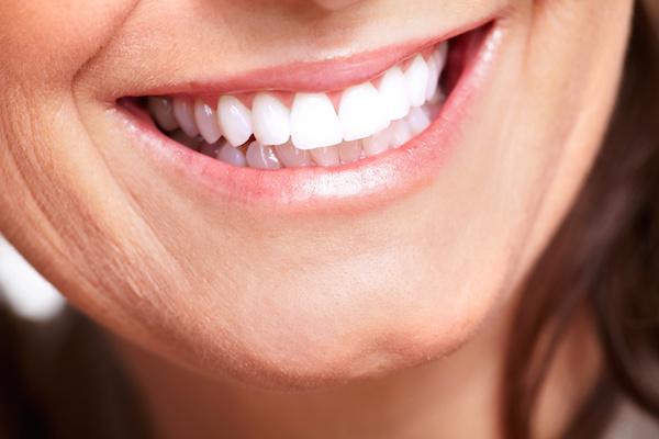 Laugh Lines Dr. Joe Thomas Dentistry