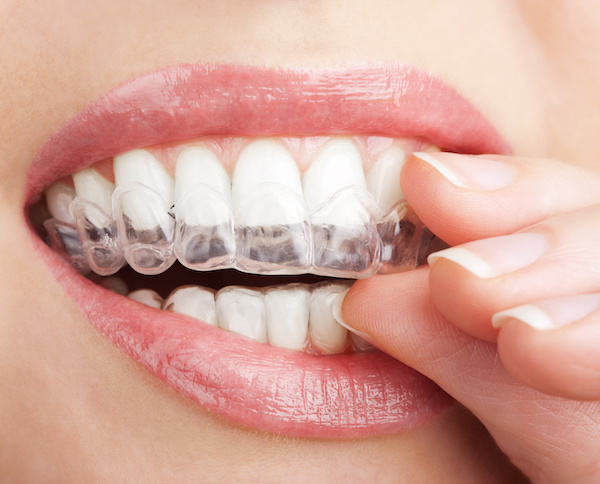 Invisalign Dr. Joe Thomas Dentistry