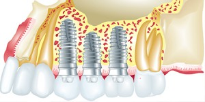 dental implants Dr. Joe Thomas Dentistry