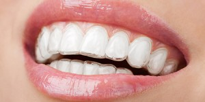 smile with orthodontic retainers Dr. Joe Thomas Dentistry